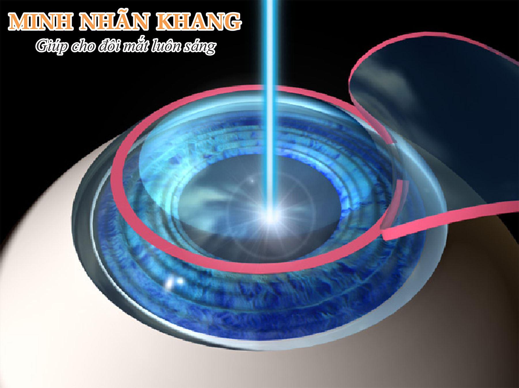 Thủy tinh thể vẩn đục sẽ bị phá vỡ bằng tia laser trước khi đưa ra ngoài